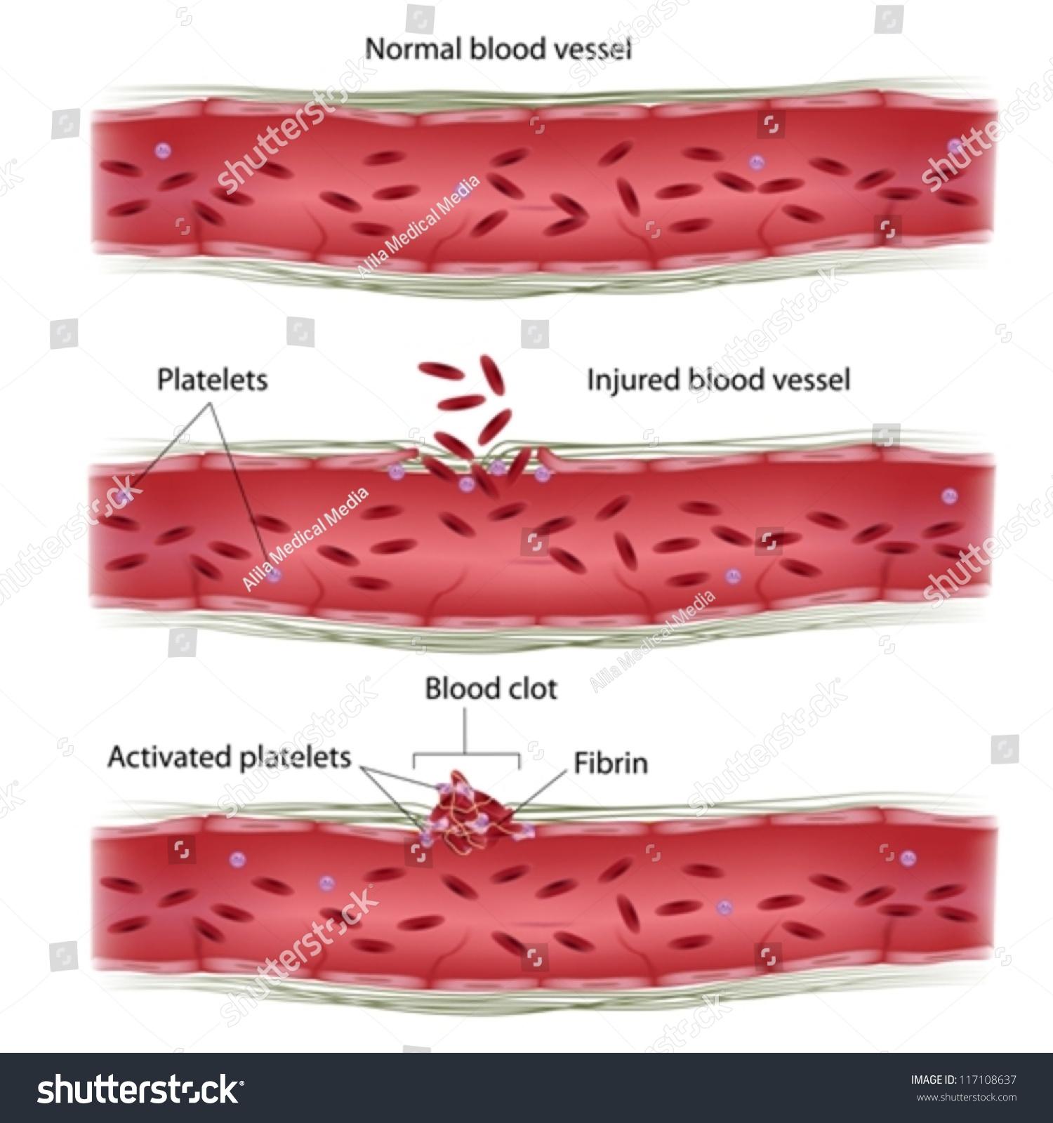 Blood Clotting Process Stock Vector 117108637 - Shutterstock
