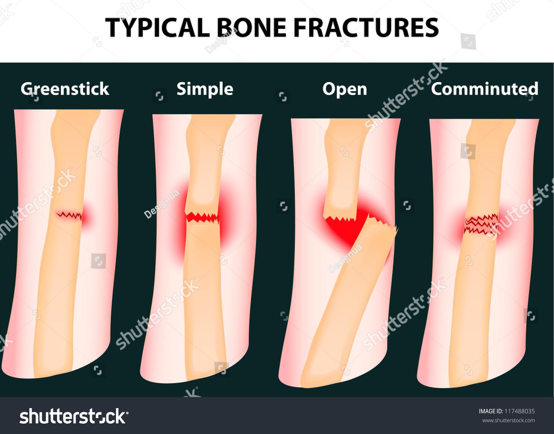 Typical Bone Fractures Vector Scheme Stock Vector Royalty Free