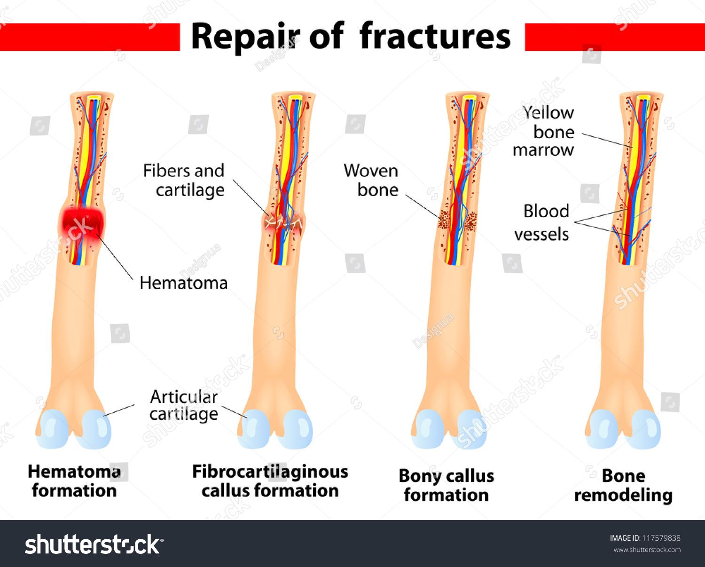 fracture repair vector scheme stock vector 117579838 - shutterstock, Muscles