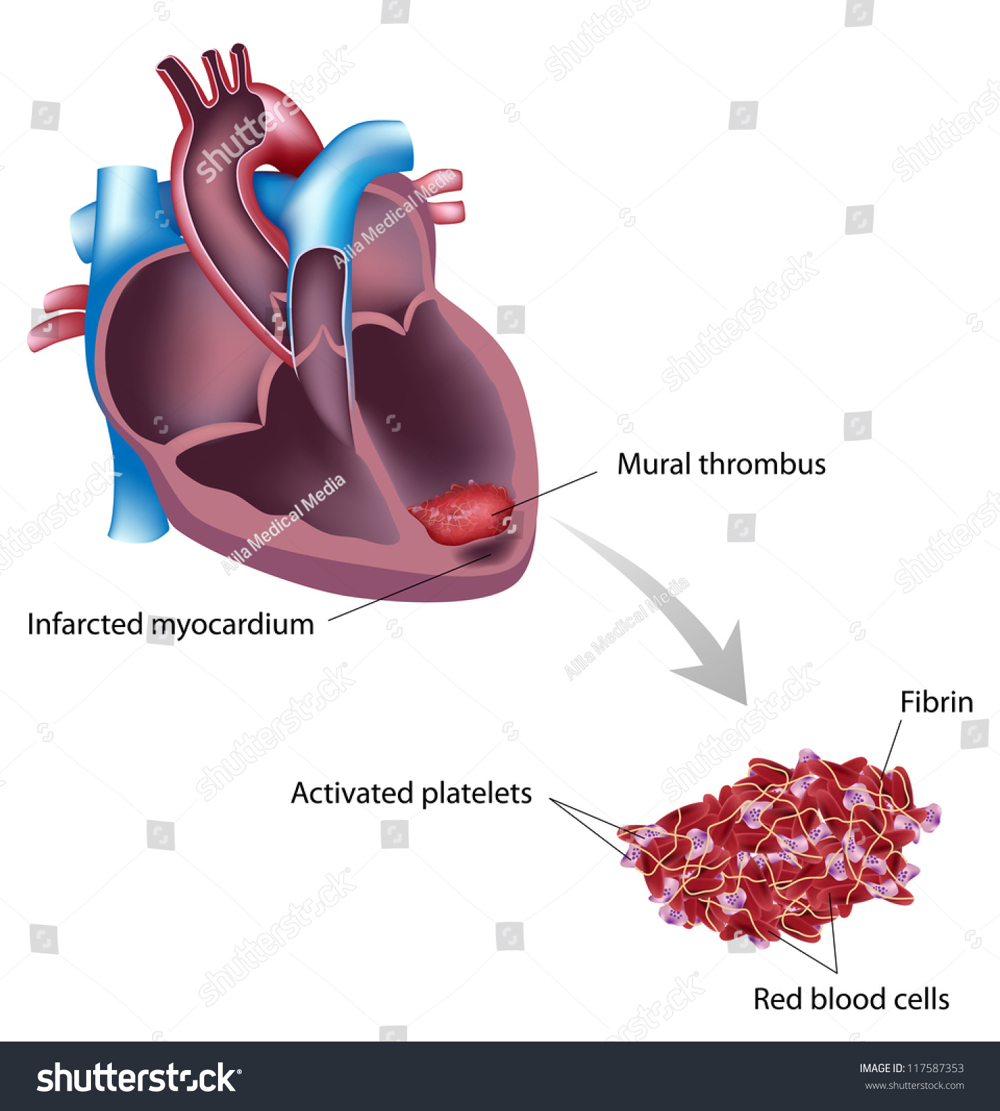 Mural thrombus complication after heart attack stock photo for Aortic mural thrombus