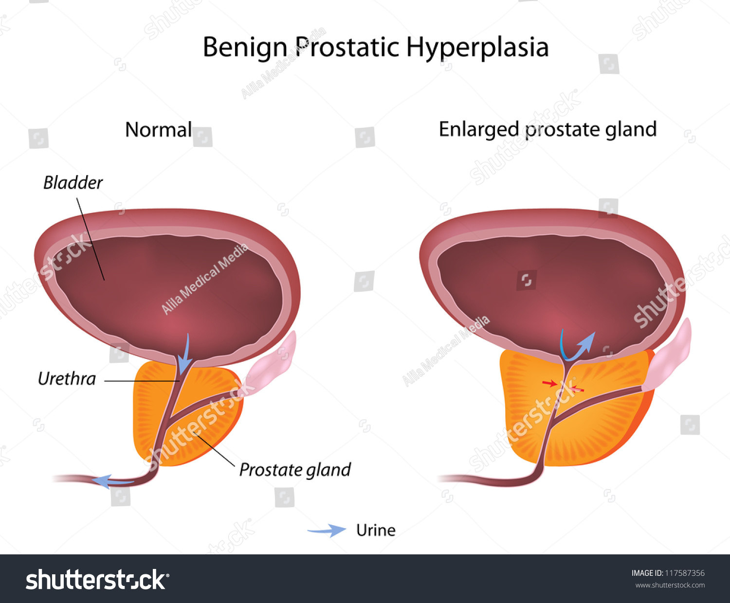 benign prostatic hyperplasia Bph stands for benign prostatic hyperplasia, or enlarged prostate gland half of  all men will have prostate problems by the age of 50 bph.