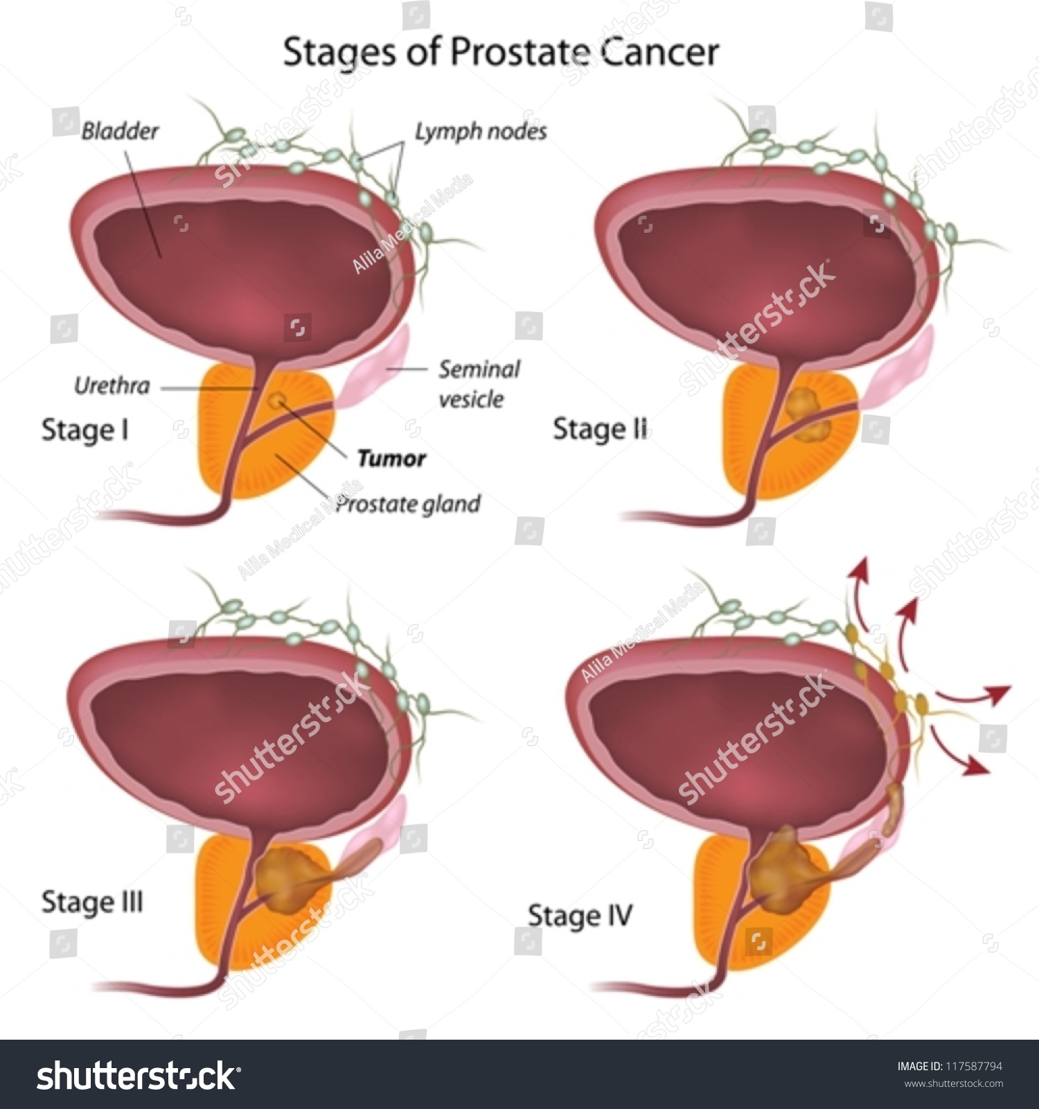 Stages Prostate Cancer Stock Vector 117587794 - Shutterstock-3046
