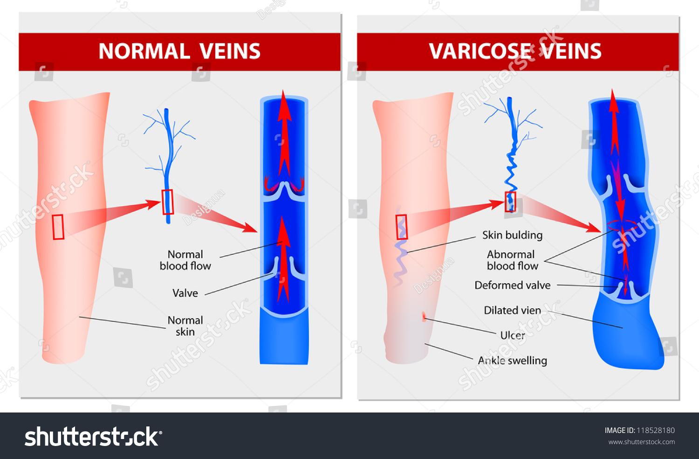 Varicose Vein Forms Leg Normal Vein Stock Vector Royalty Free