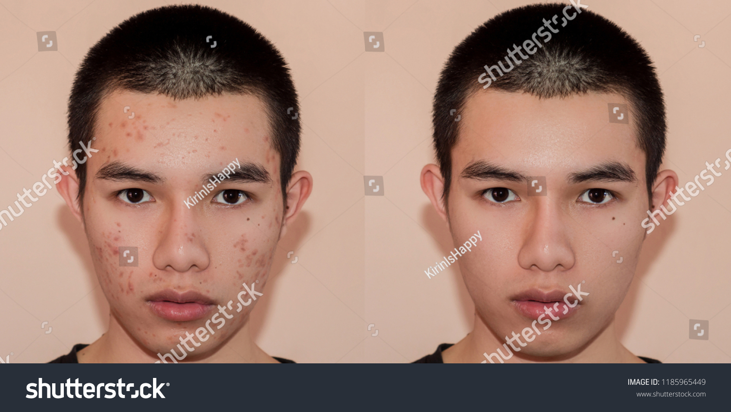 Young Man Before After Treatment Acne Stock Photo Edit Now 1185965449