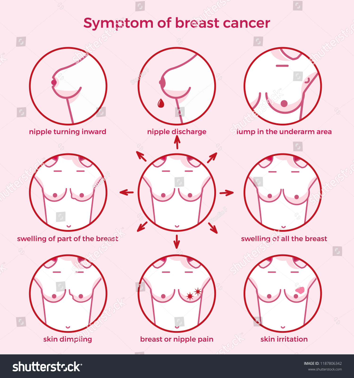Symptoms Breast Cancer Medicine Pathology Anatomy Stock Vector ...