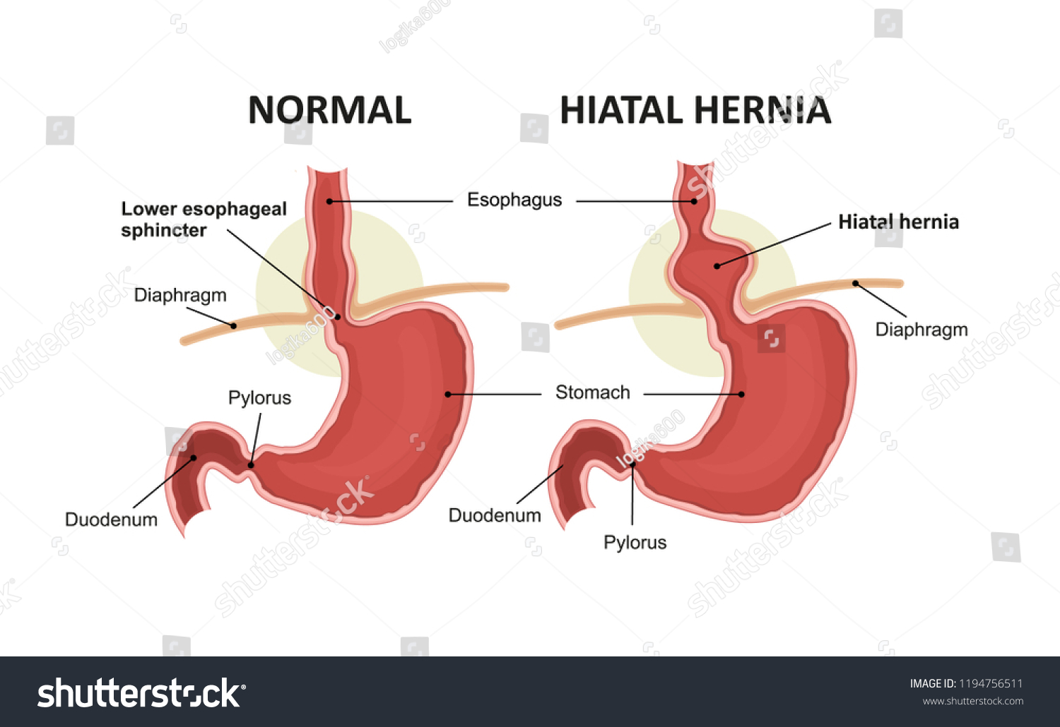 Hiatal Hernia Normal Anatomy Stomach Stock Vector Royalty Free