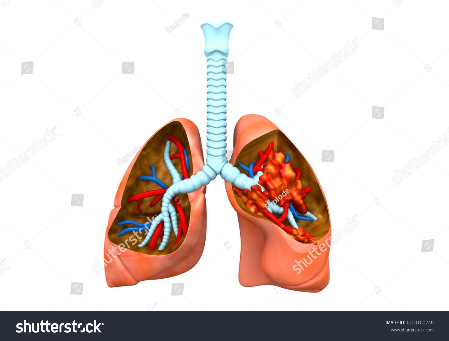 Anatomy Human Lungs Lung Disease 3 D Stock Illustration 1200100246