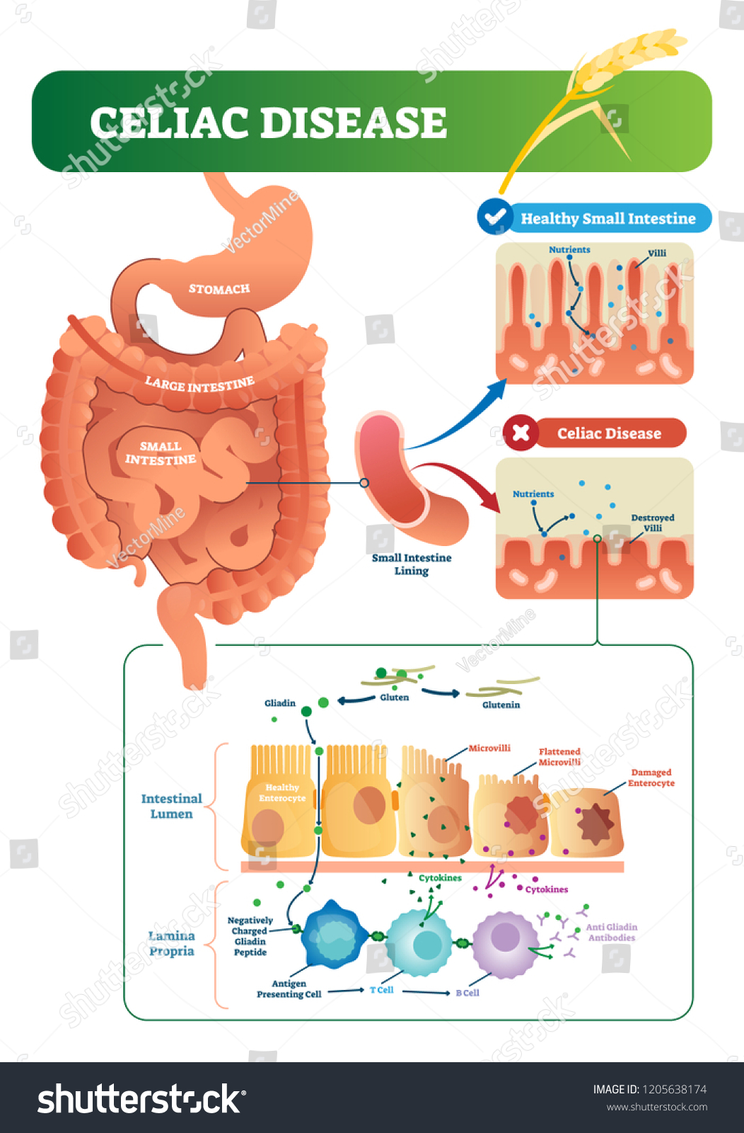 celiac disease vector illustration  labeled diagram with its structure   autoimmune illness in stomach and
