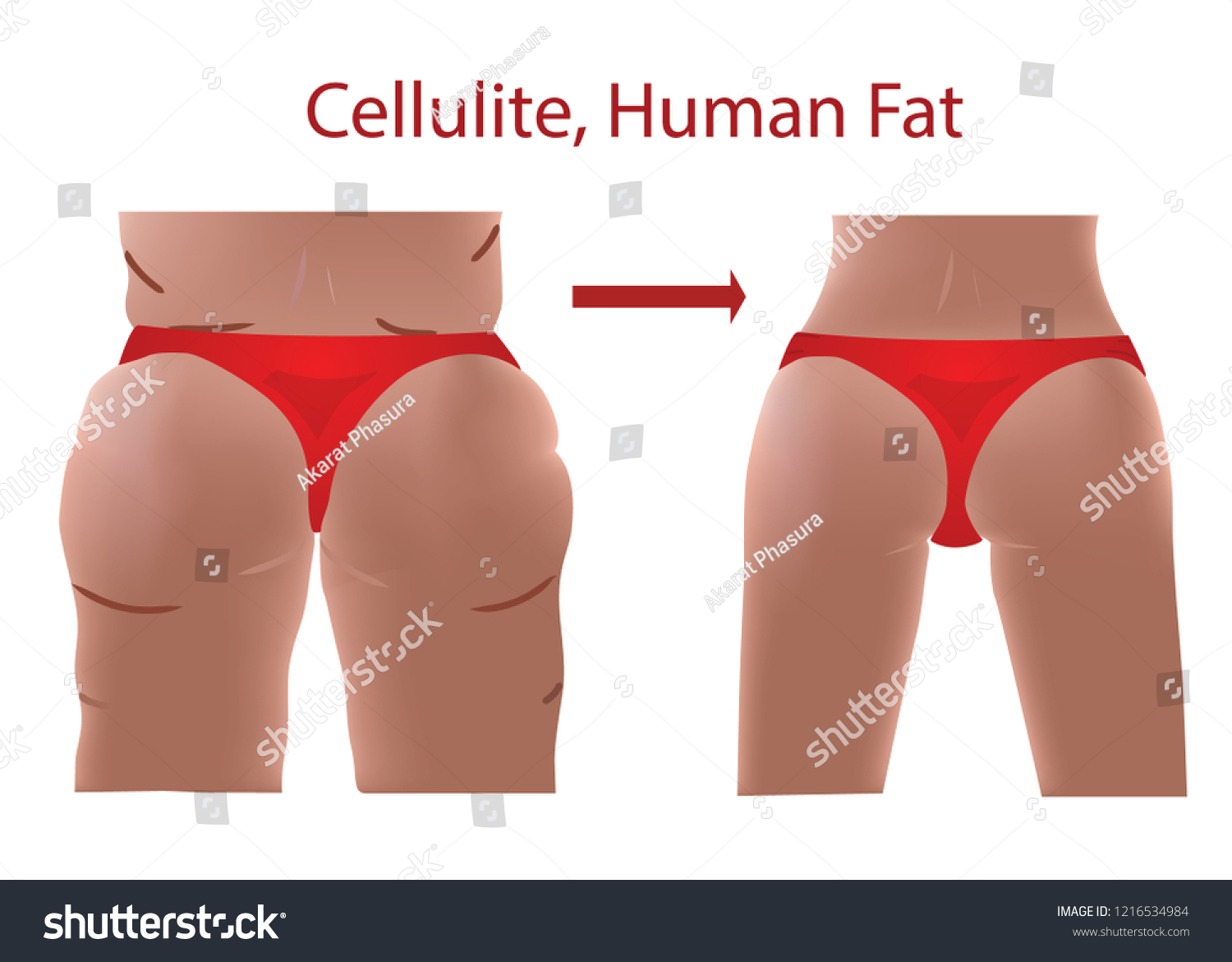 Fat female body with cellulite, Human Fat, Before and After with Fit body,
