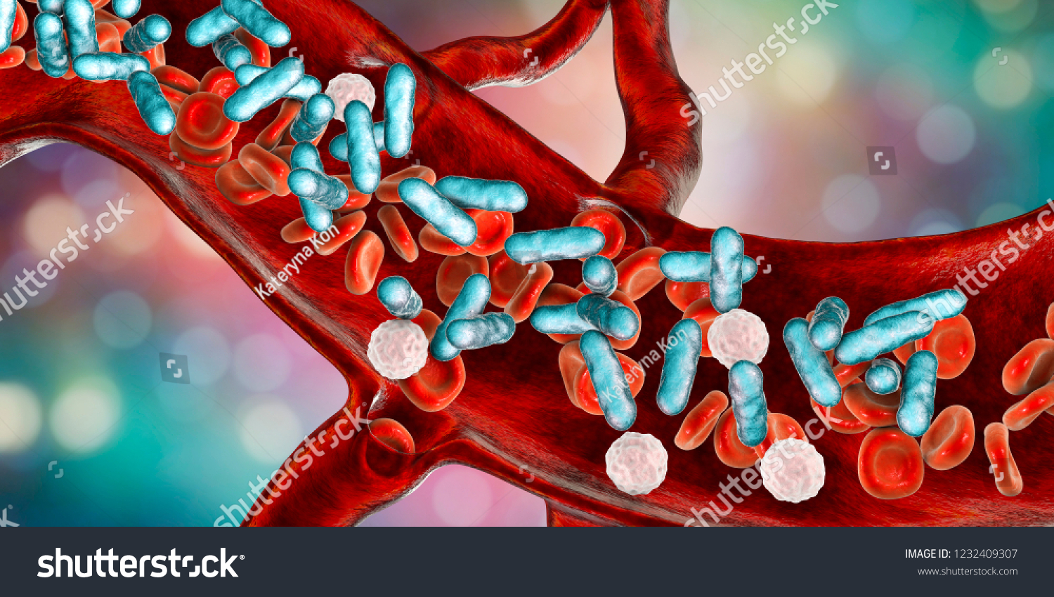 Sepsis, bacteria in blood. 3D illustration showing rod-shaped bacteria with red blood cells and leukocytes
