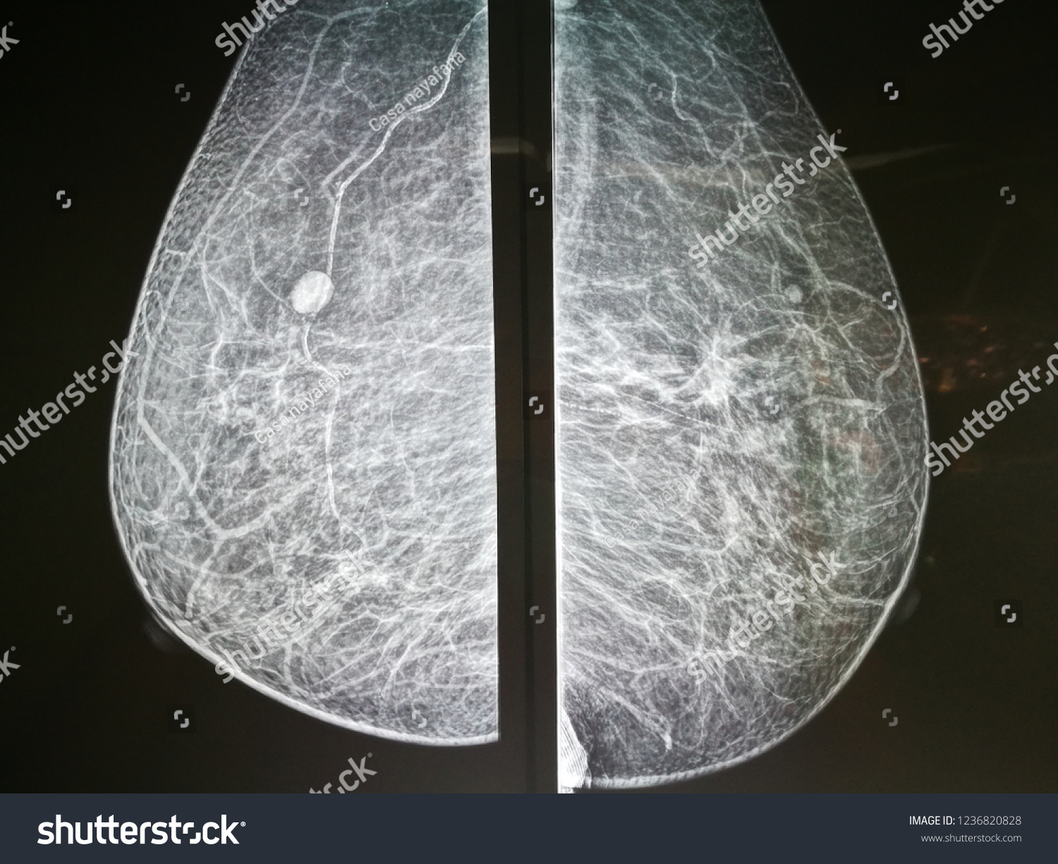 Right Breast Calcification showed in Mammogram in patient with Intraductal  Breast Cancer.