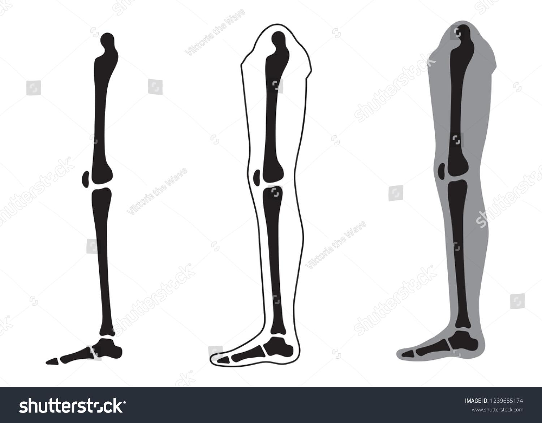 Human Leg Silhouette Skeletal Anatomy Vector Stock Vector Royalty