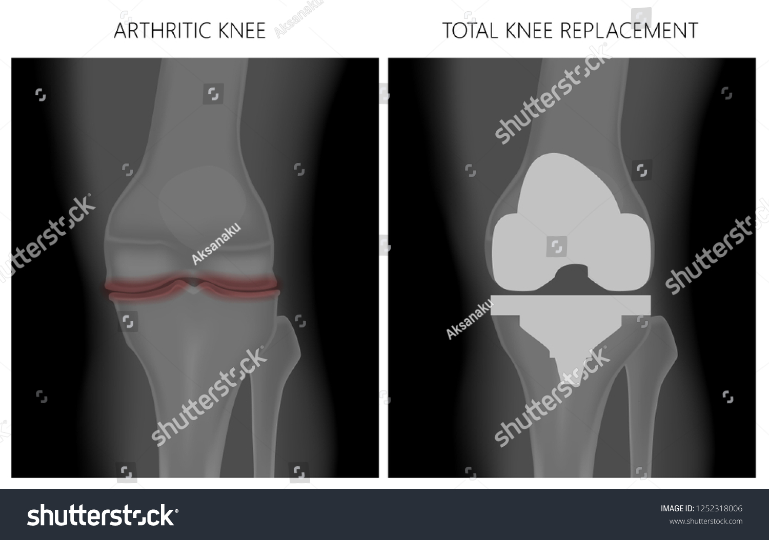Royalty Free Stock Illustration Of Illustration Anatomy Front Xray
