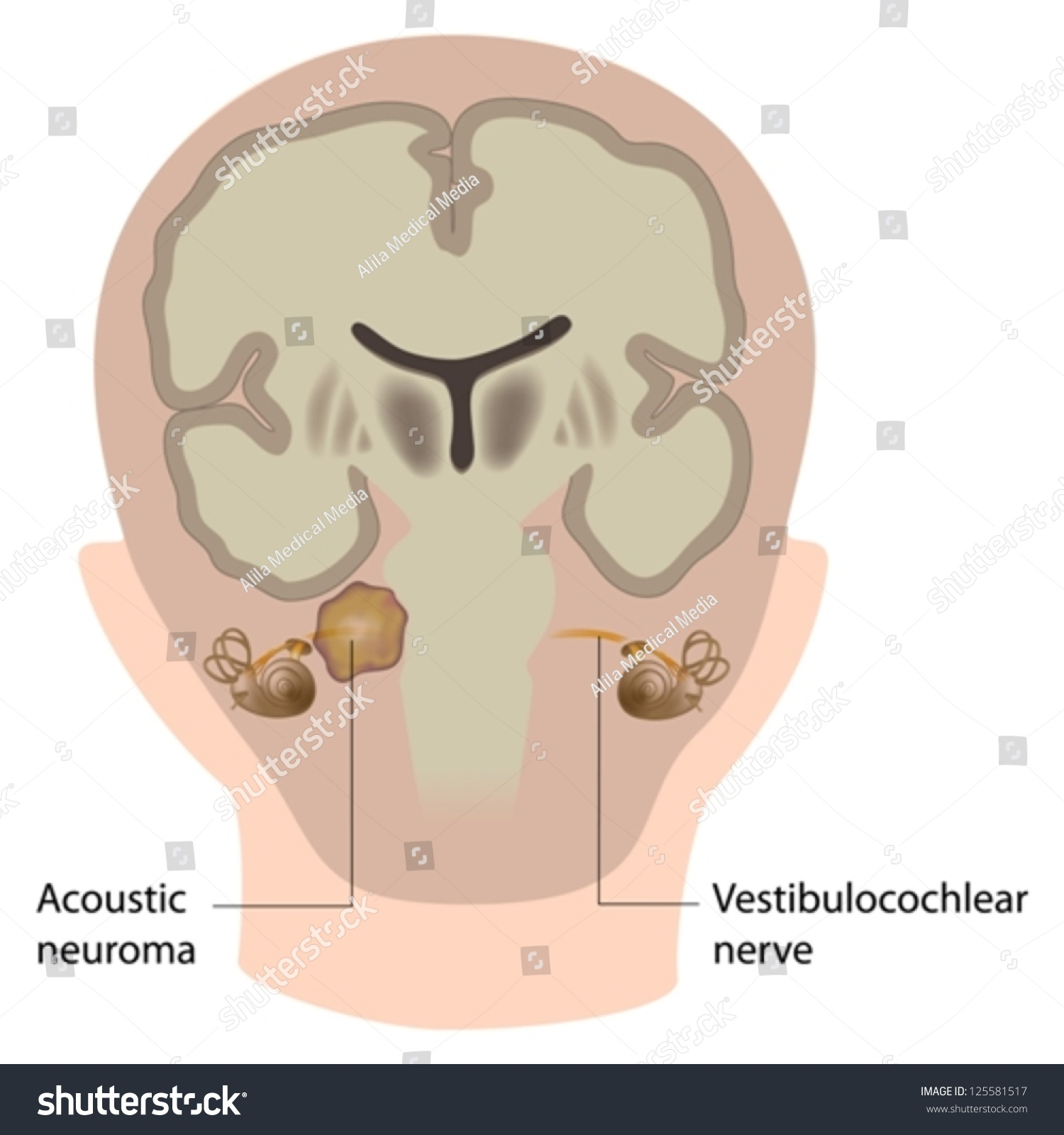 Acoustic Neuroma Vector de stock125581517: Shutterstock