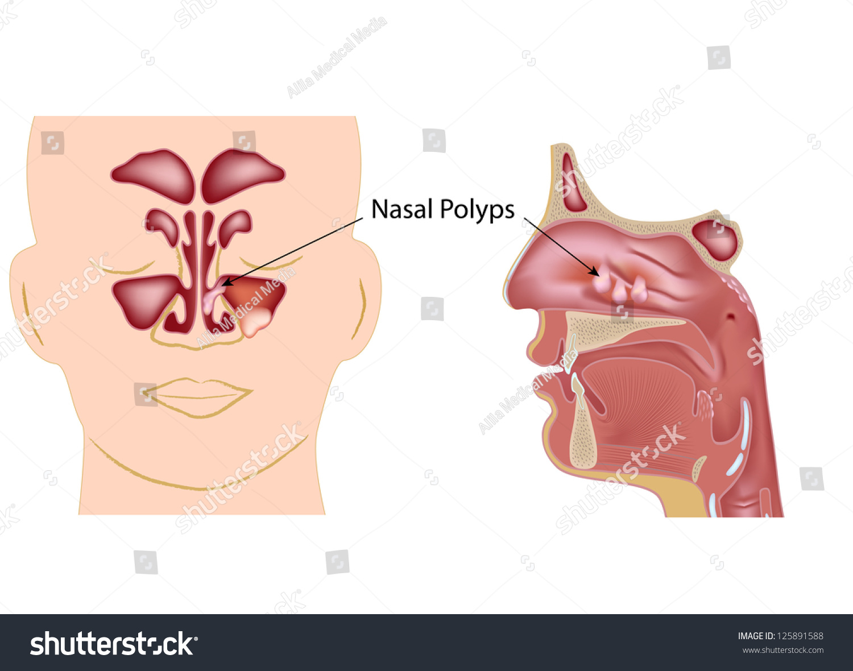 Fine Nasal Turbinate Anatomy Elaboration - Anatomy Ideas - yunoki.info