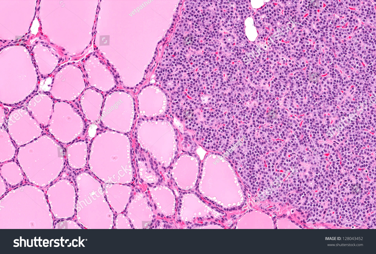 Normal Healthy Parathyroid Gland Right Half Stock Photo Edit Now
