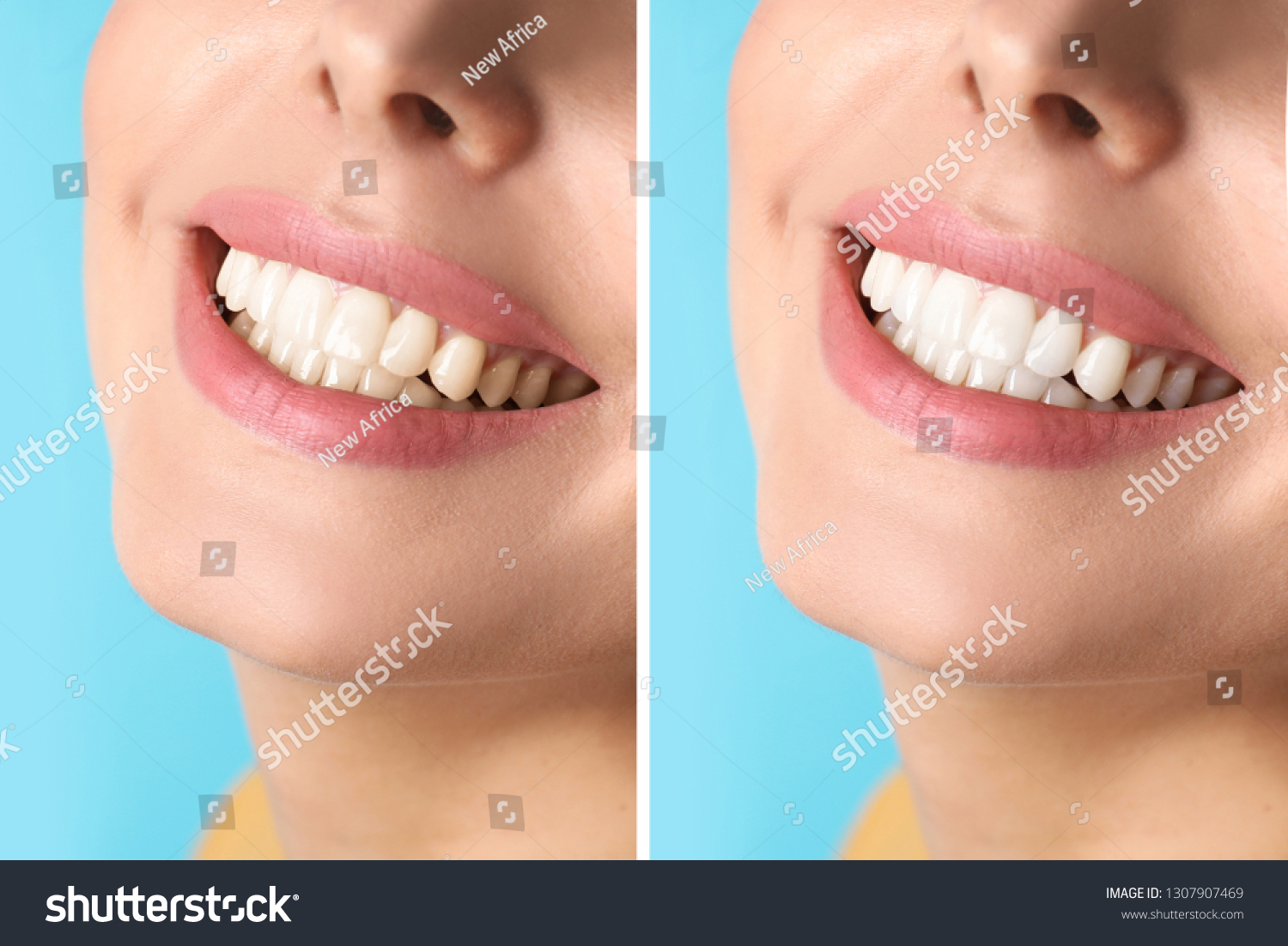 Smiling Woman Before After Teeth Whitening Stock Photo (Edit