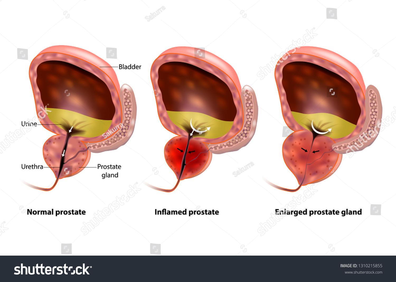 Próstata agrandada de próstata