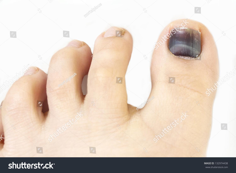 Subungual Hematoma Blue Black Toe Nail Stock Photo (Download Now ...