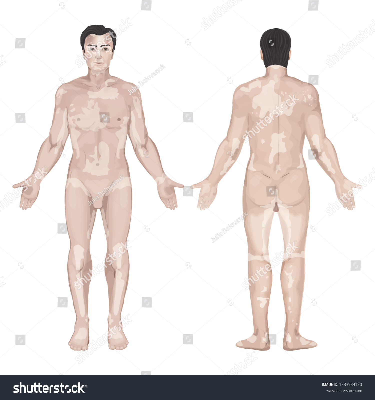 Male Figure Vitiligo Syndrome Localization Symptoms Stock Vector Royalty Free 1333934180