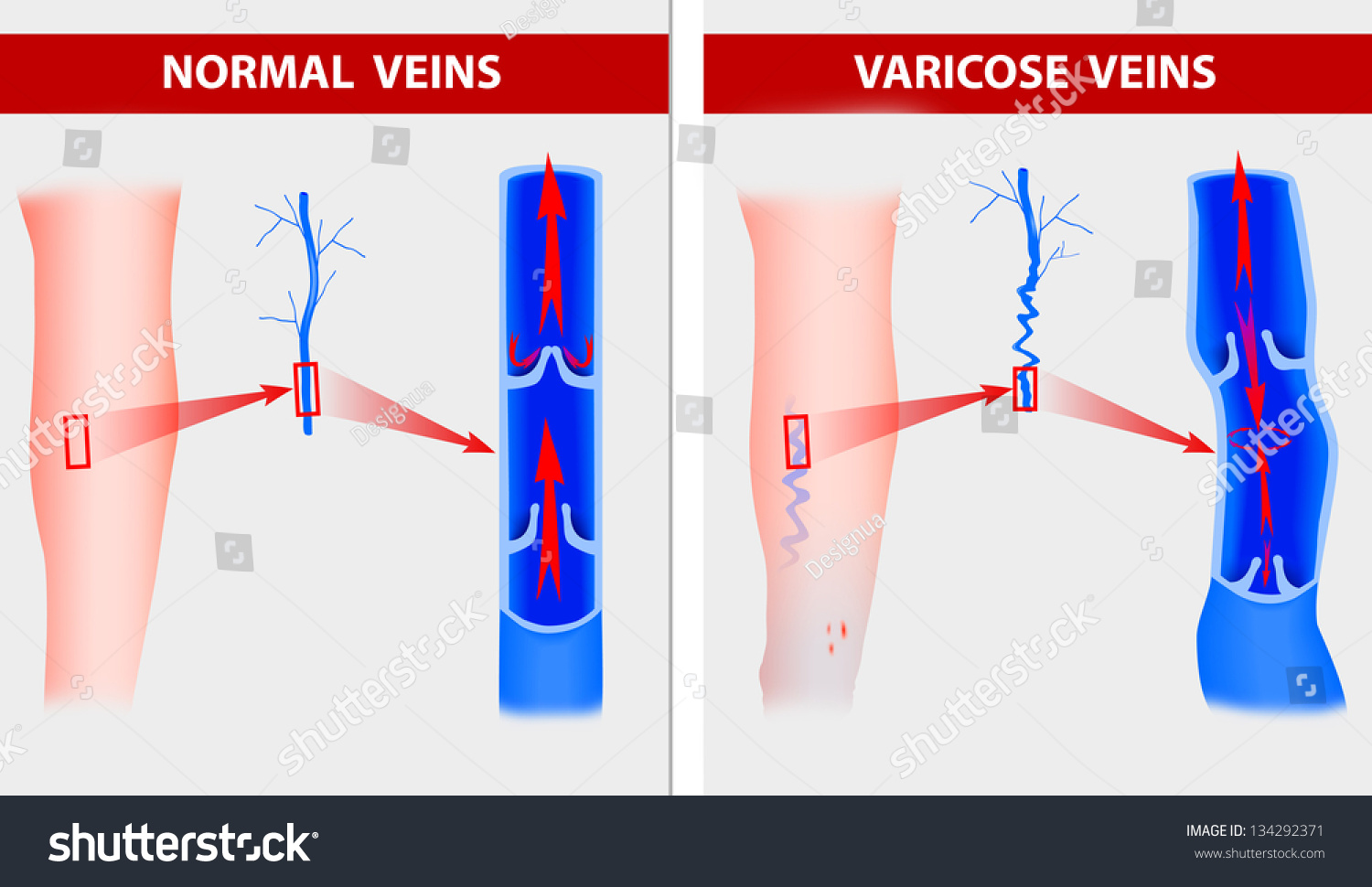 Varicose veins the illustration shows how a varicose vein forms in a