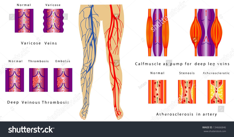 Vascular System Legs Atherosclerosis Artery Deep Stock Vector HD ...