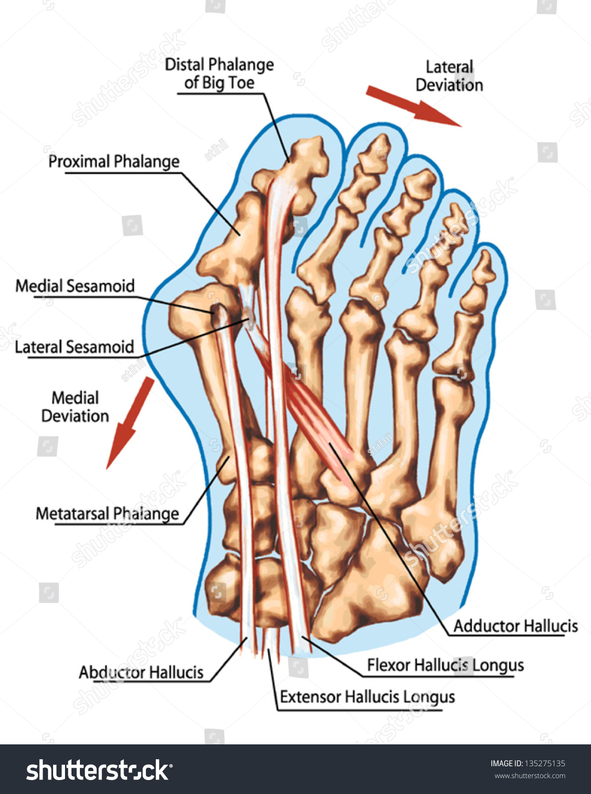Hallux Valgus Pathogenic Mechanism Lateral Deviation Stock Vector ...