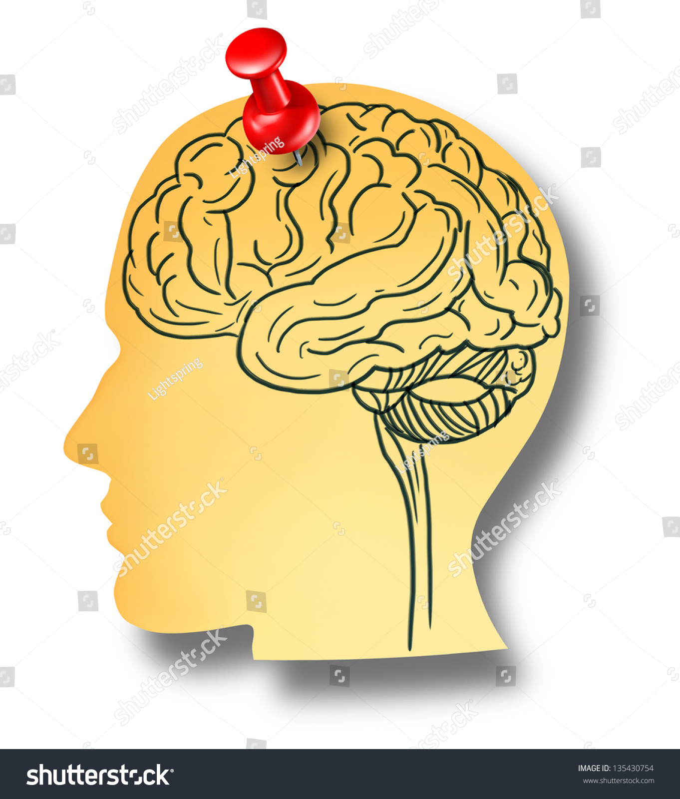 Brain Reminder Memory Loss Concept Dementia Stock Illustration ...