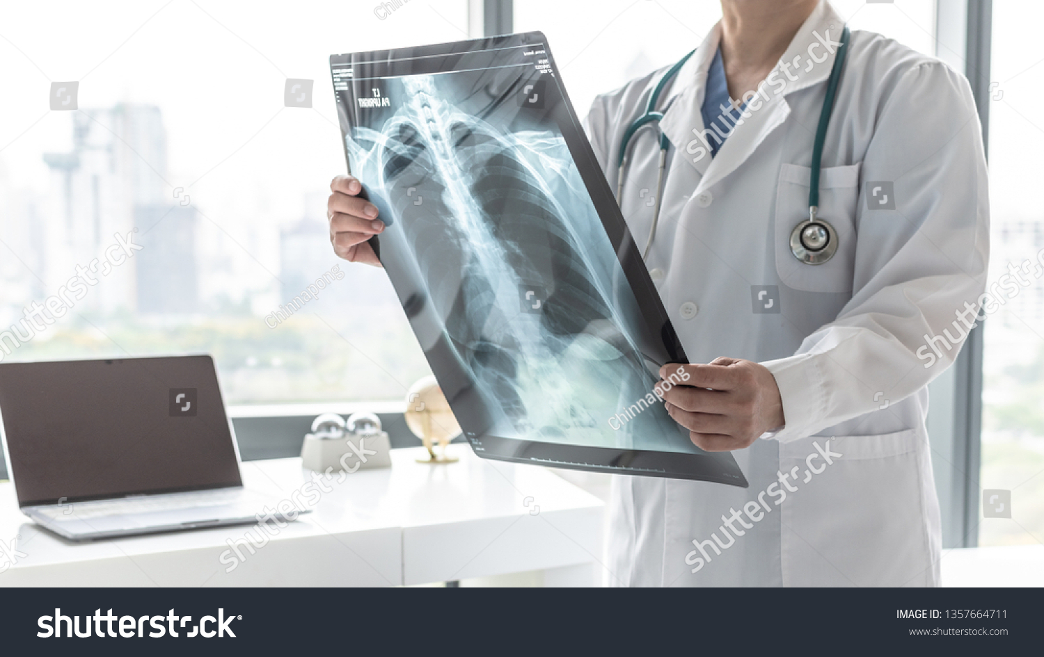 Doctor with radiological chest x-ray film for medical diagnosis on patient's health on COVID-19, asthma, lung disease and bone cancer illness, healthcare hospital service concept