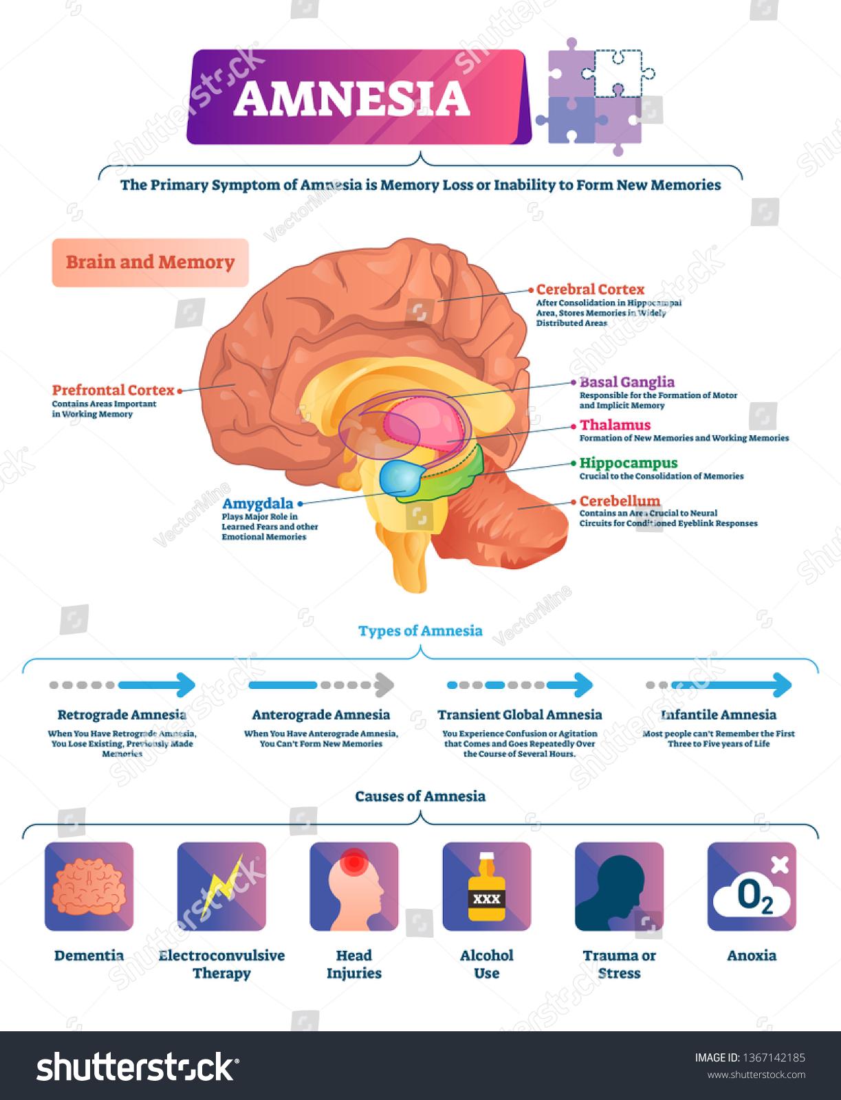 What Part Of The Brain Stores Memory >> Amnesia Vector Illustration Labeled Brain Memory Stok Vektor