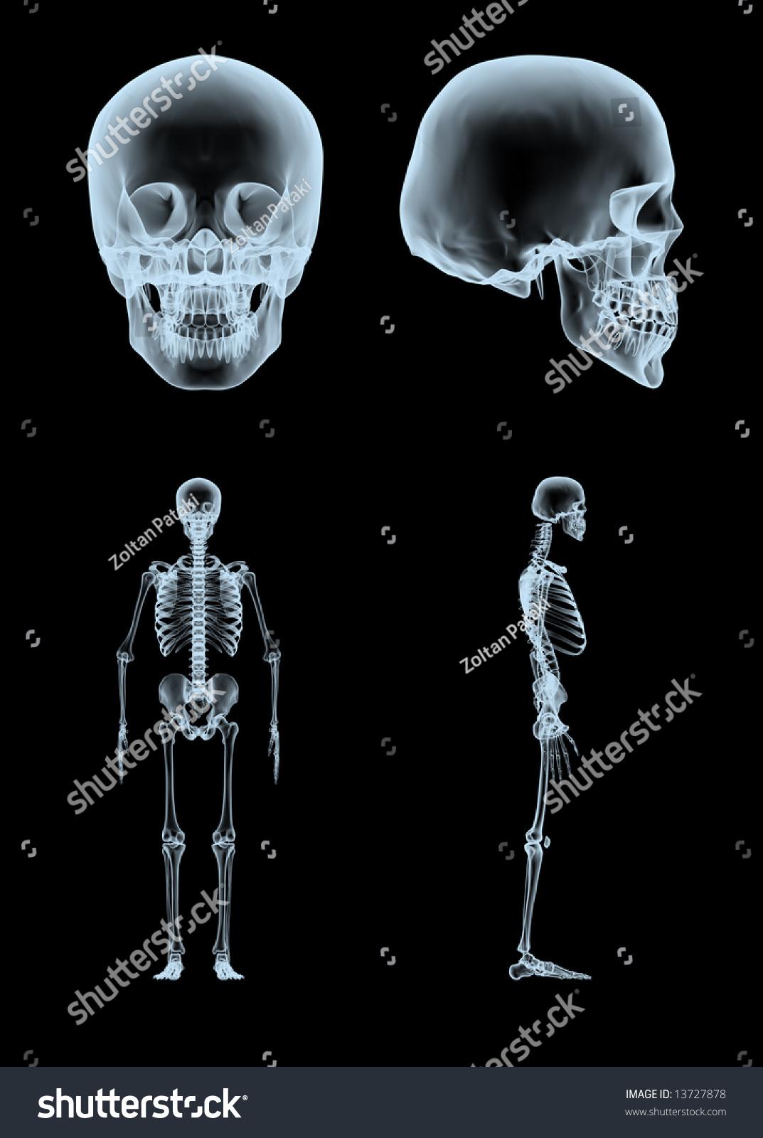 3 D Rendered Xray Skull Skeleton Two Stock Illustration 13727878 ...