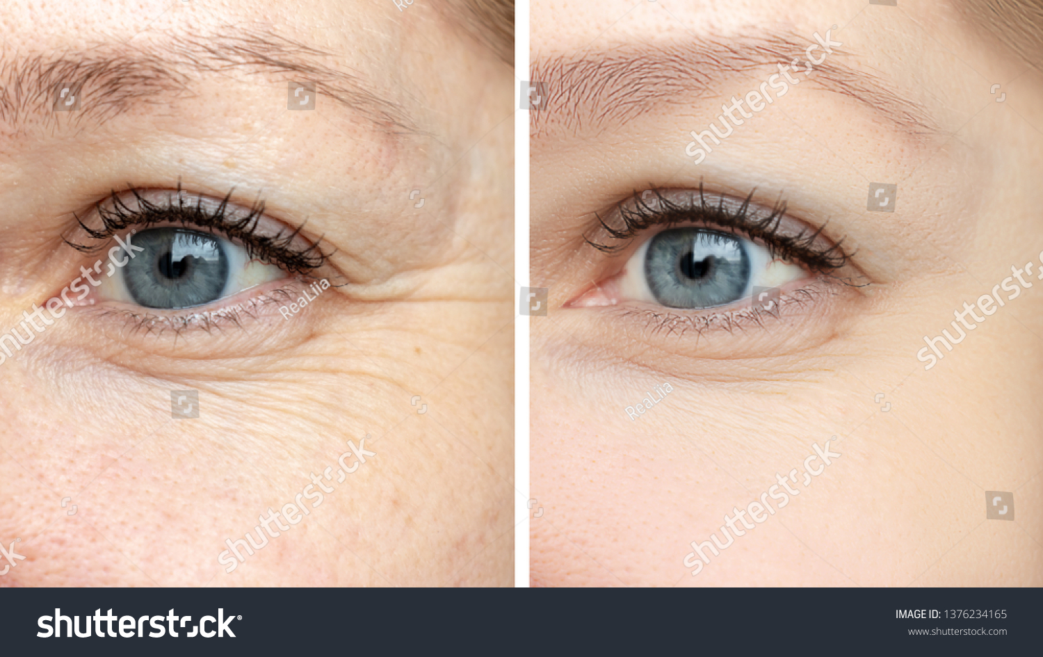 Woman face, eye wrinkles before and after treatment - the result of rejuvenating cosmetological procedures of biorevitalization, face lifting and pigment spots removal. #1376234165