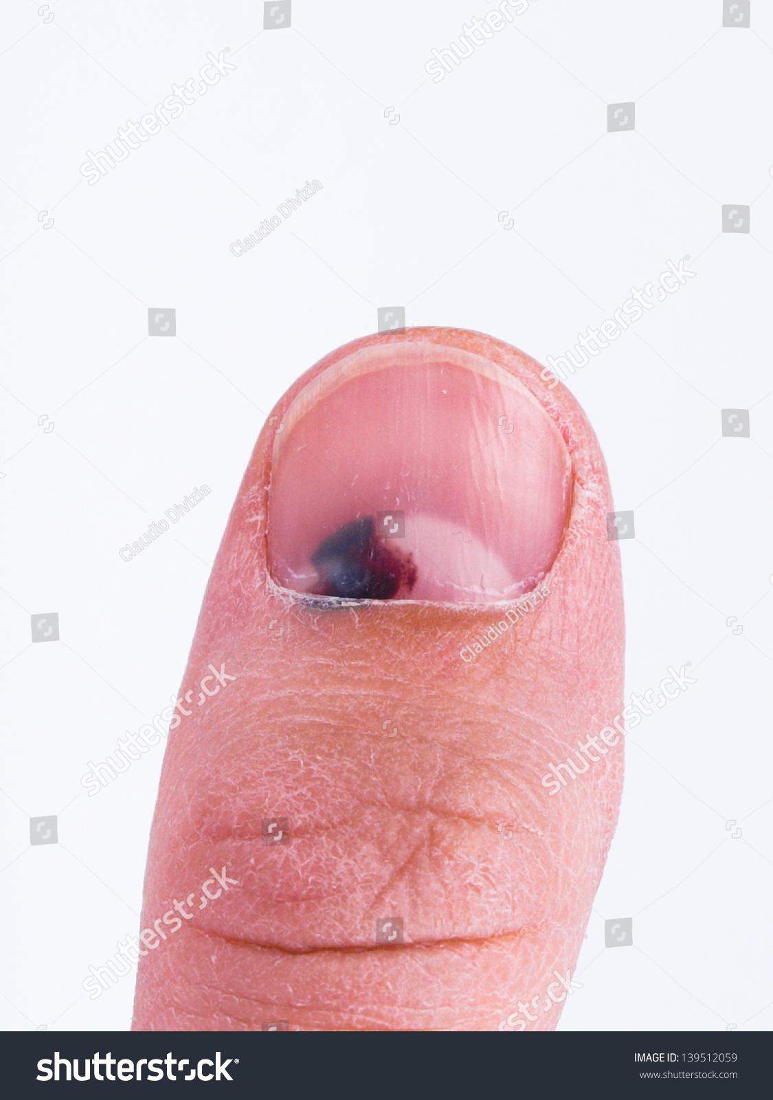 toenail condition