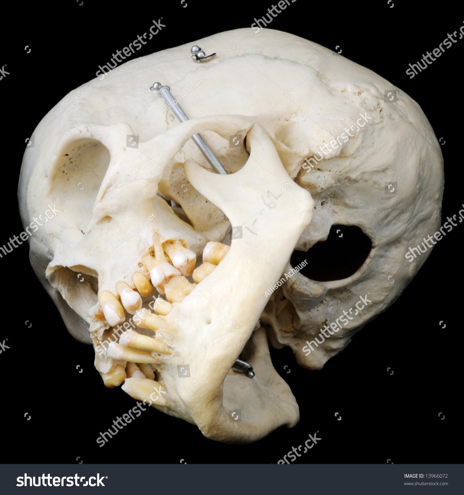 Фото настоящего черепа человека скуловая кость 4