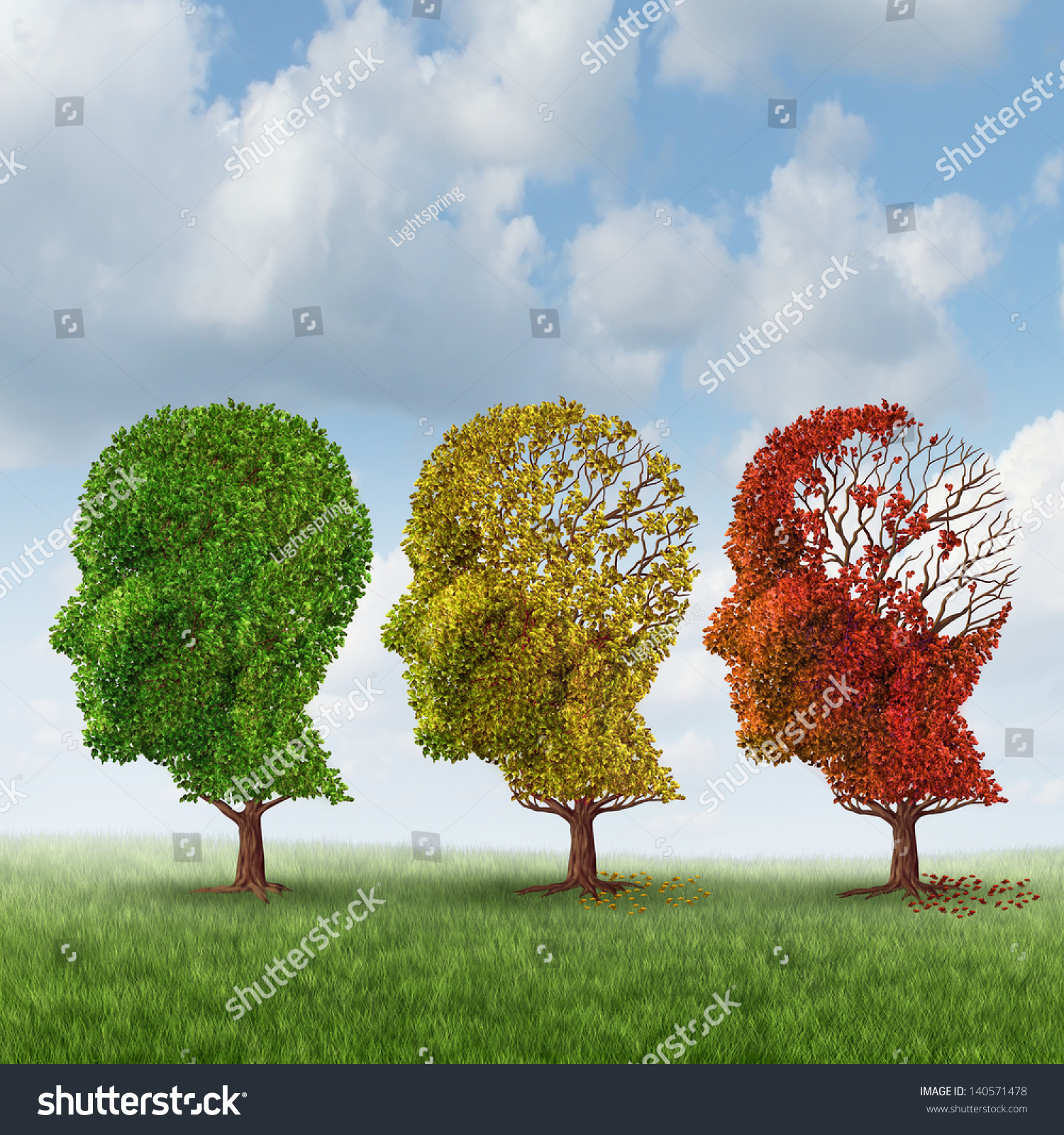 Royalty-free Brain aging and memory loss due to… #140571478 Stock ...