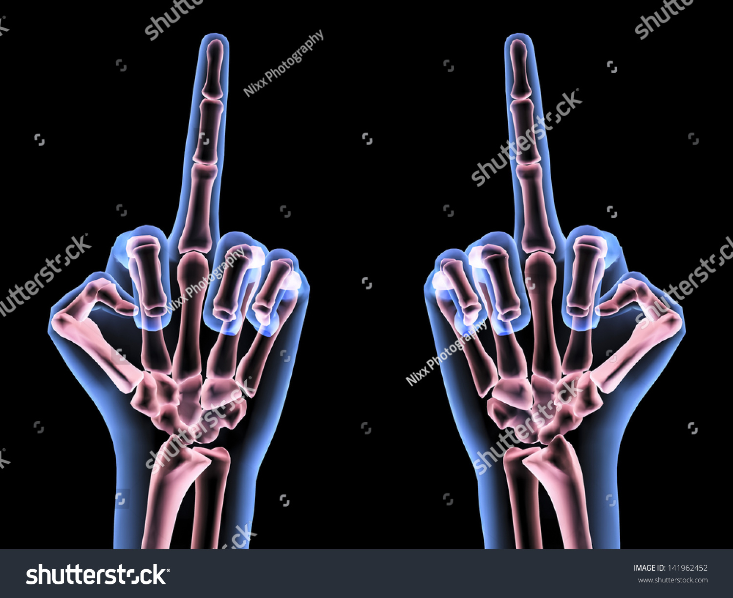 X Ray Hands Showing Middle Finger Stock Illustration 141962452 ...