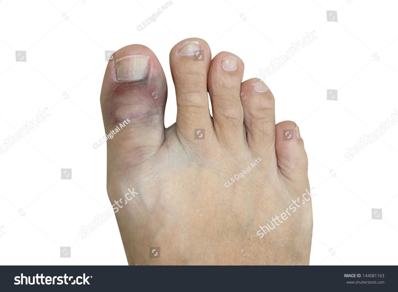 Сильный ушиб пальца на ноге: что 40