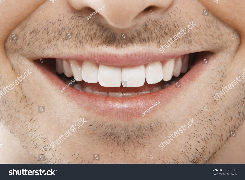 perfect smile veneer купить в магазине