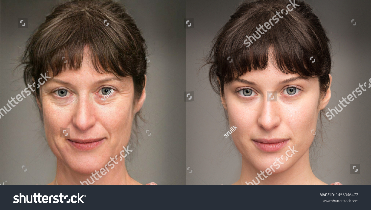 Woman before and after a rejuvenation treatment. Wrinkles, crow' #1455046472