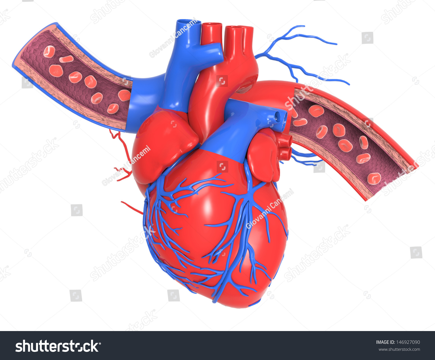 how to clean heart arteries