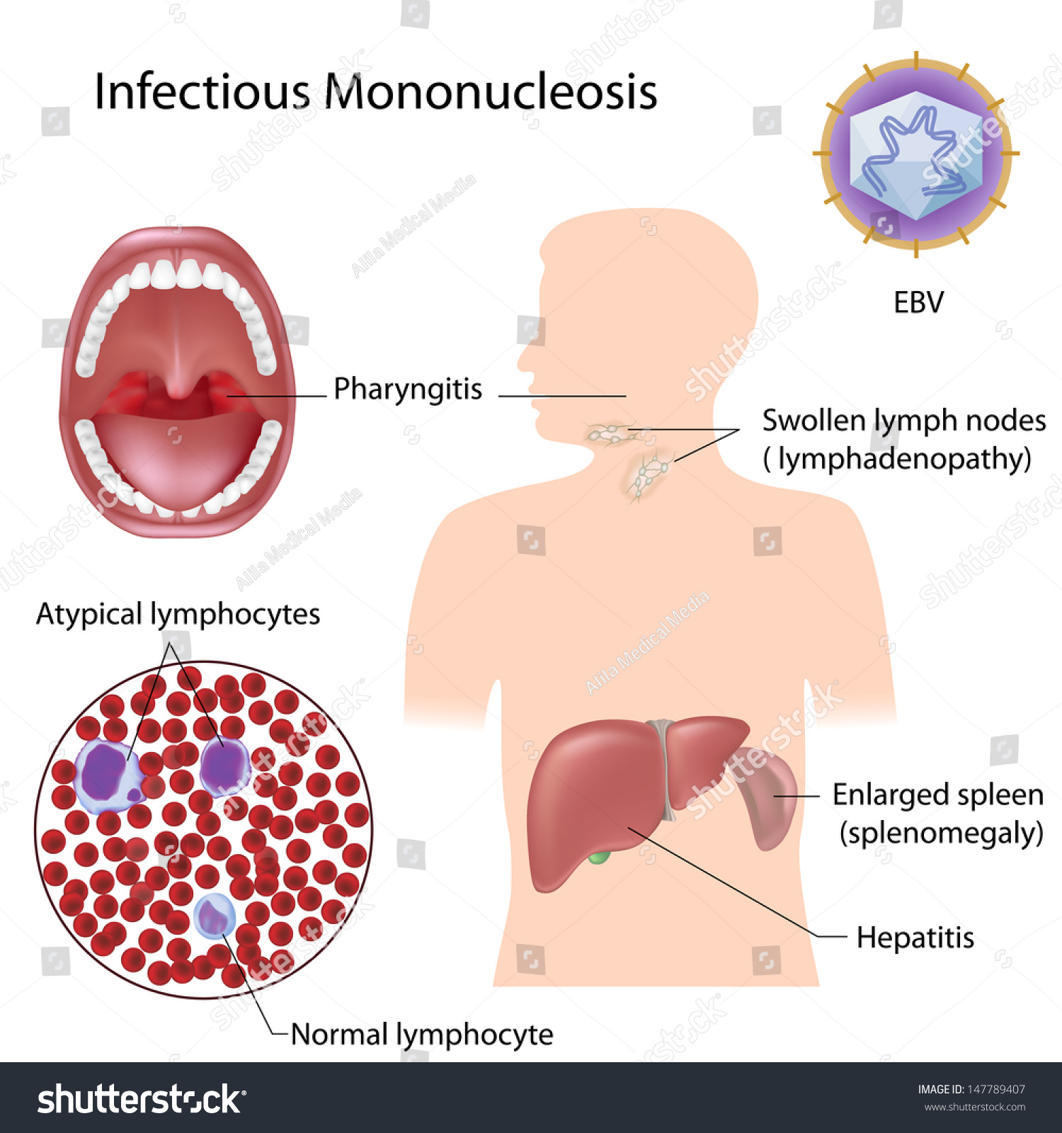 mononucleosis paper Mononucleosis is an infectious viral disease that affects millions of people every year this disease is often referred to as the kissing disease there is no known cure for mononucleosis but there are preventative measures.