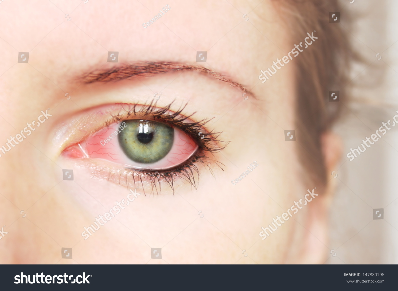 Closeup Irritated Red Bloodshot Eye Conjunctivitis Stock Photo Edit