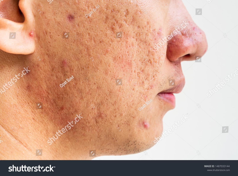 Deep Acne Scars On Cheeks لم يسبق له مثيل الصور Tier3 Xyz