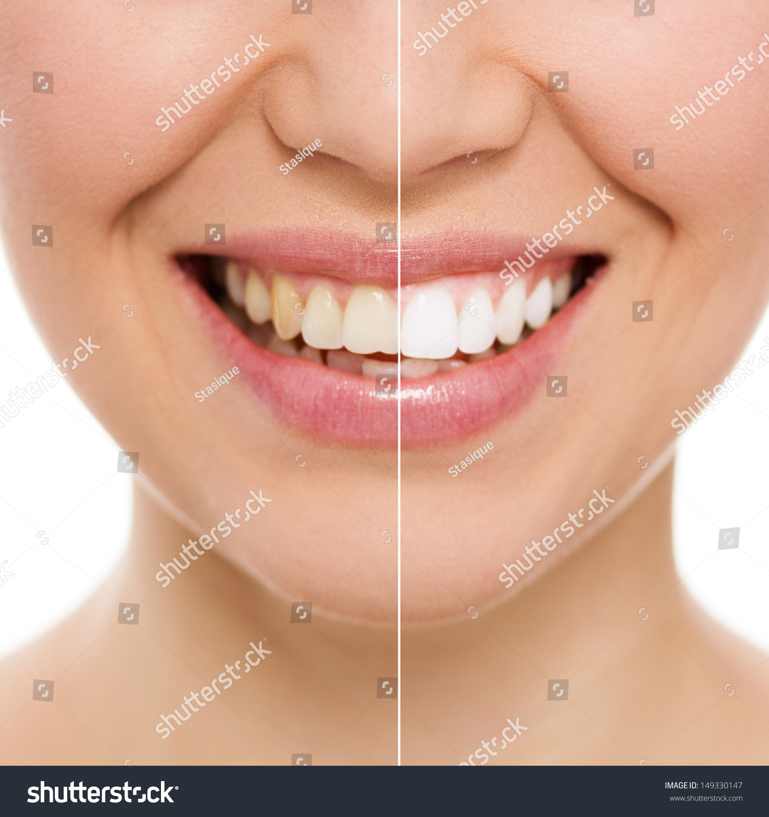 Whitening treatment as is indicated by comparison to the whitening - Before And After Teeth Bleaching Or Whitening Treatment Close Up Of Young Caucasian Female S