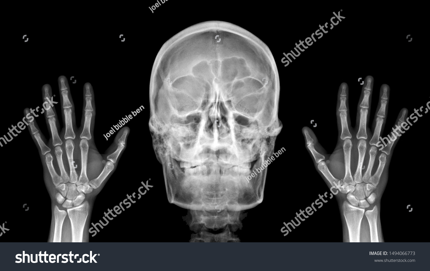 Anatomy Of Hell Deutsch film x ray radiograph show human stock image | download now