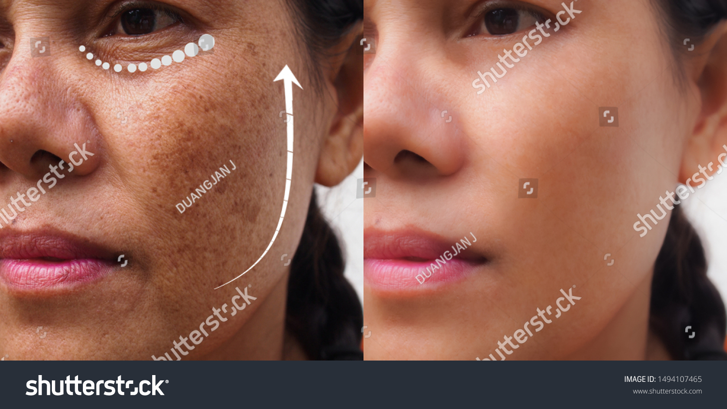 Image Before After Anti Aging Dark Stock Photo Edit Now 1494107465