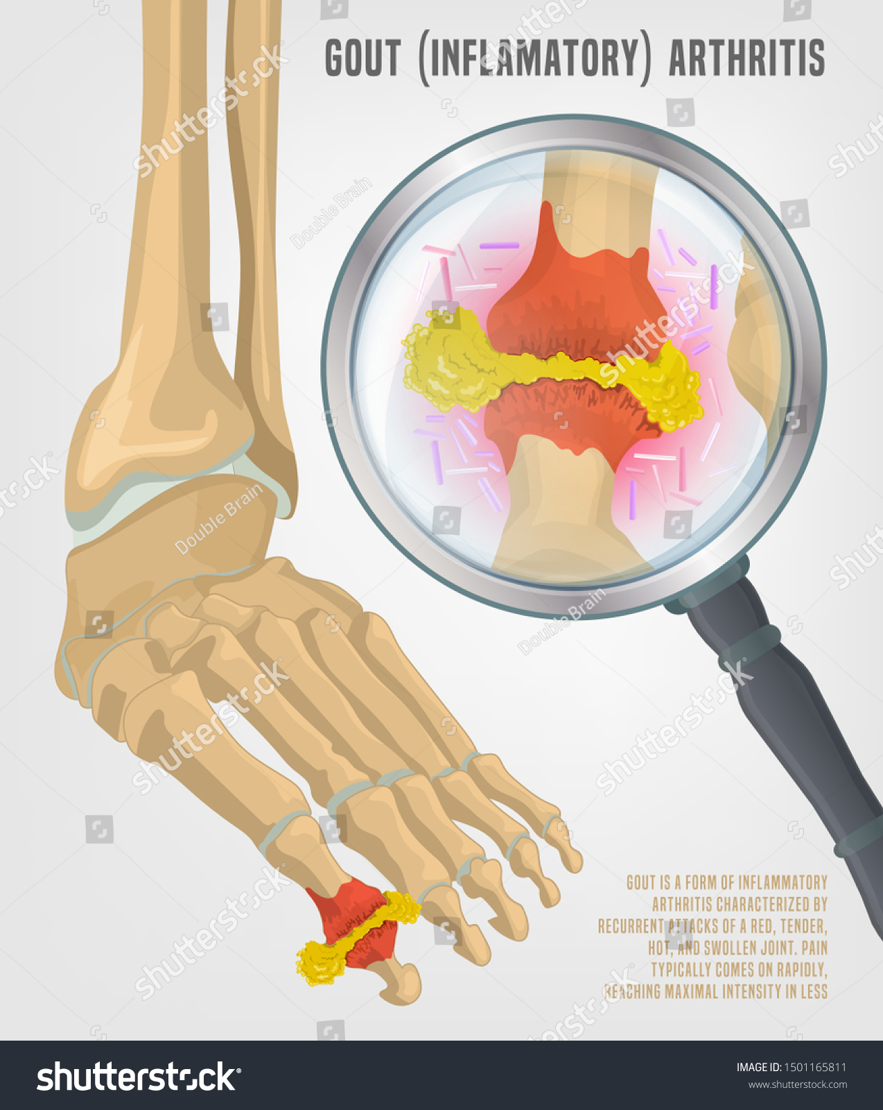 Gout Arthritis Image Joint Pain Human Stock Vector Royalty Free 1501165811
