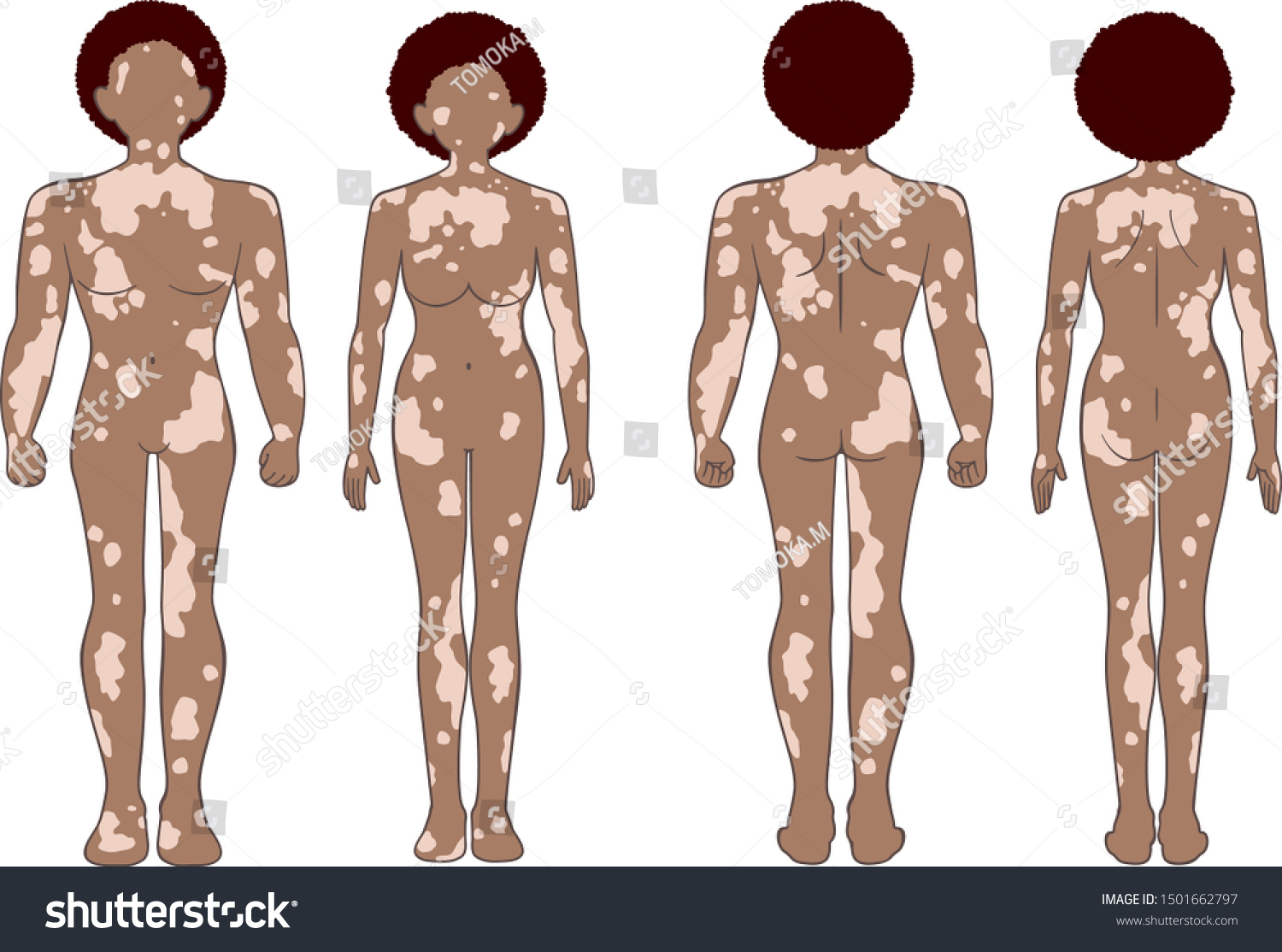 Whole Body Man Woman Who Have Stock Vector Royalty Free 1501662797