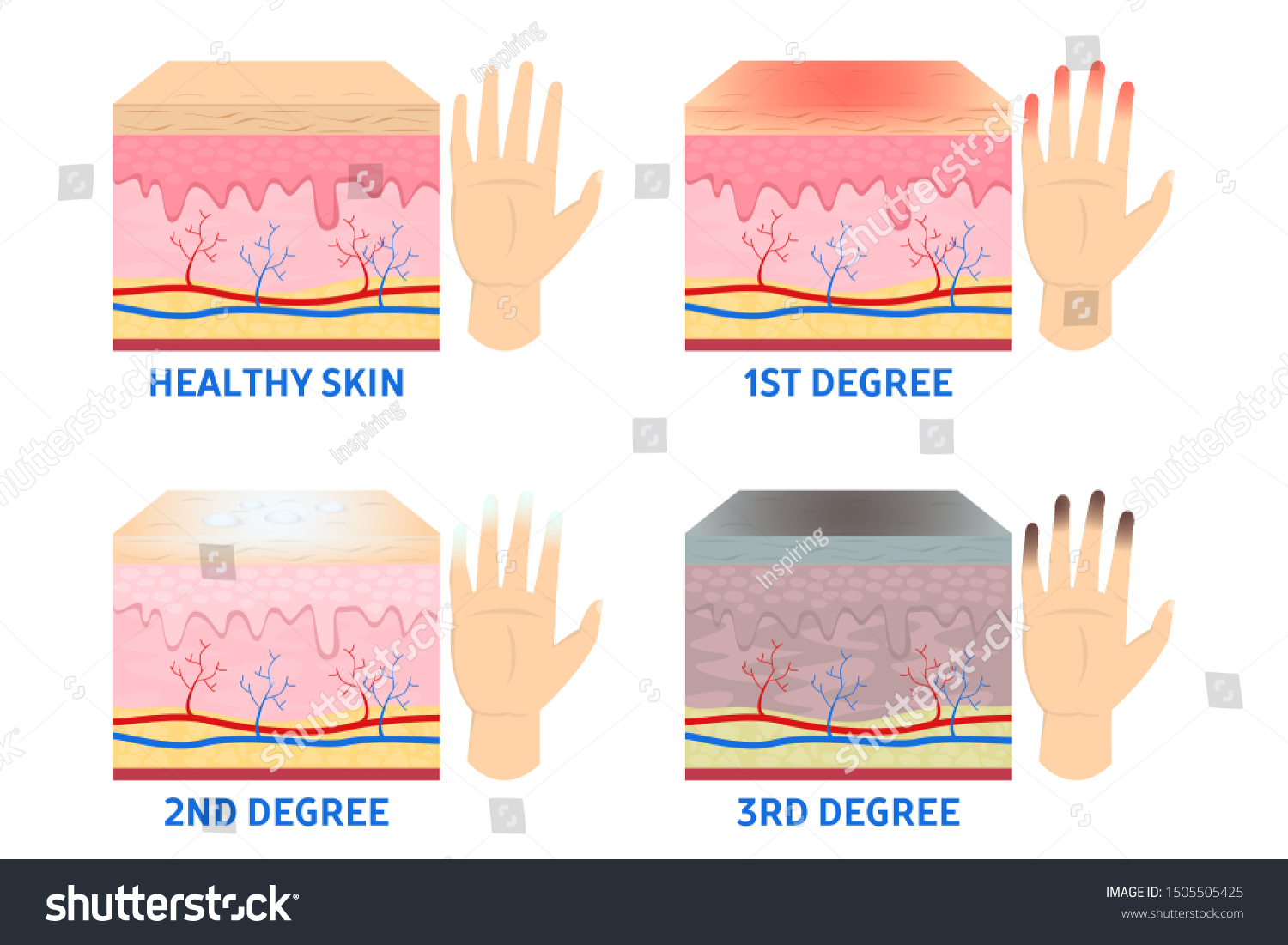 Frostbite stages. Frostbitten finger, hypothermia in cold season. Medical infographic. Blue and red fingers. Isolated vector illustration in cartoon style