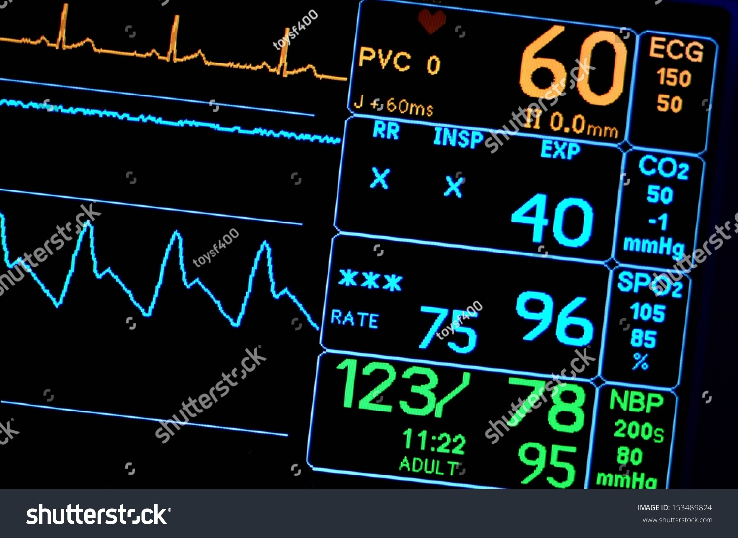 vital sign A practical guide to clinical medicine  it can provide important information about cardio-pulmonary dysfunction and is considered by many to be a fifth vital sign.